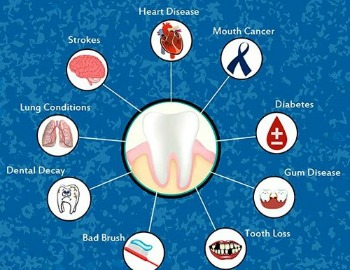 Poor Dental Health can be Life Threatening