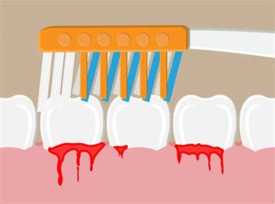 Bleeding  Gums is the Least of the Problem
